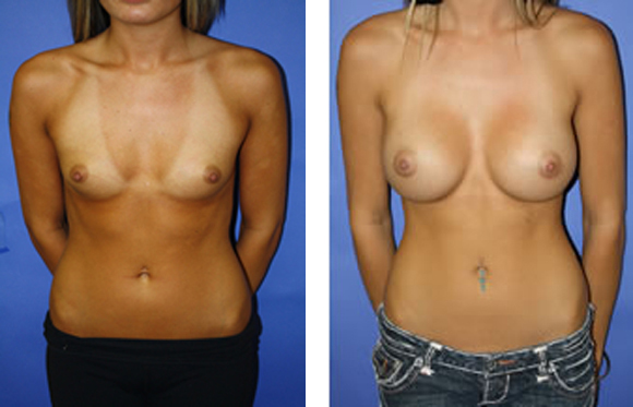 areolar incision breast augmentation