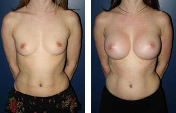 silicone implants breast augmentation