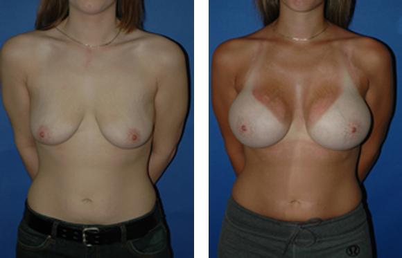 gummy bear implant breast augmentation