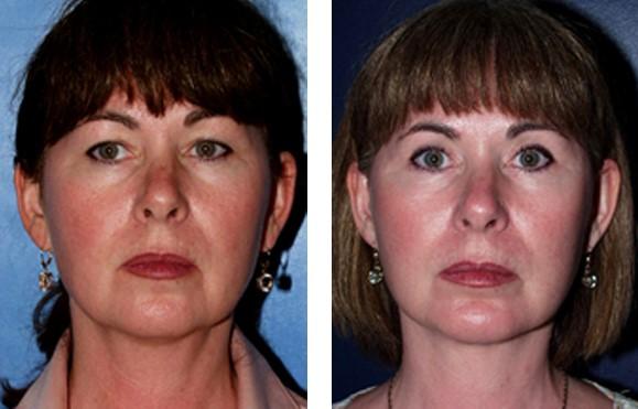 short-scar facelift before & after