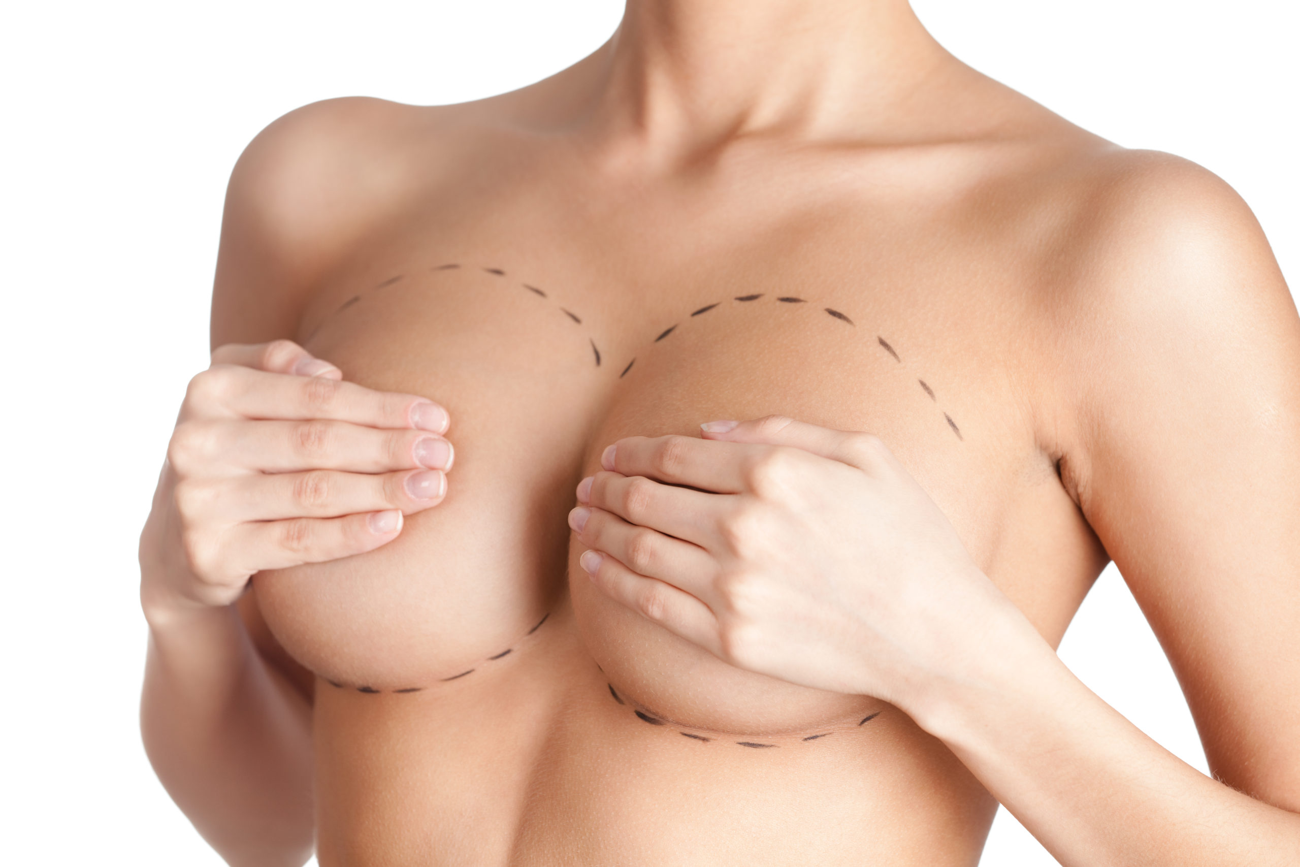 woman holding breasts with surgical marks