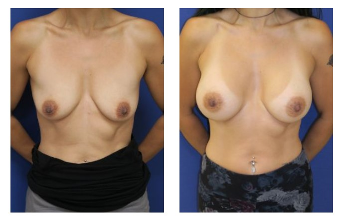 inframammary breast augmentation patient