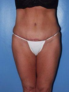 abdominoplasty (tummy tuck) patient