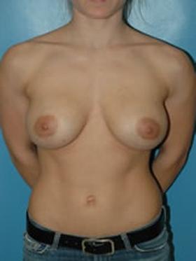 breast augmentation armpit incision patient