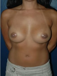 breast augmentation areolar incision patient