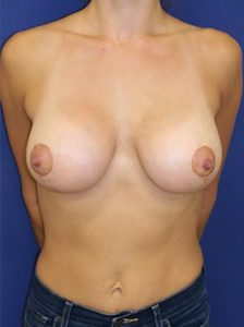 Breast lift with implants patient