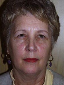 brow lift patient