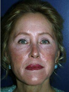eye lift patient