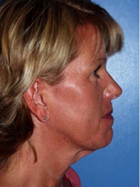 short scar facelift patient