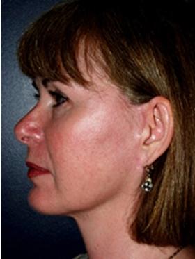 Facial implants patient