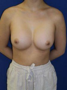 inframammary breast augmentation patient