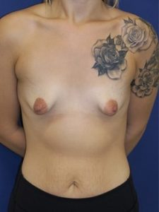 tuberous breast patient